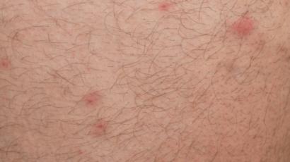 त्वचा पर लाल धब्बे के कारण और उपाय
