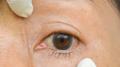 आंखों में एलर्जी के घरेलू उपाय – Home remedies for Allergies in eyes