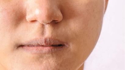रूखी त्वचा का कारण और उपाय – Dry Skin Causes and Remedies